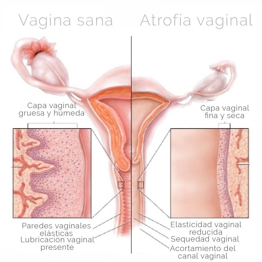 esquema de atrofia vaginal