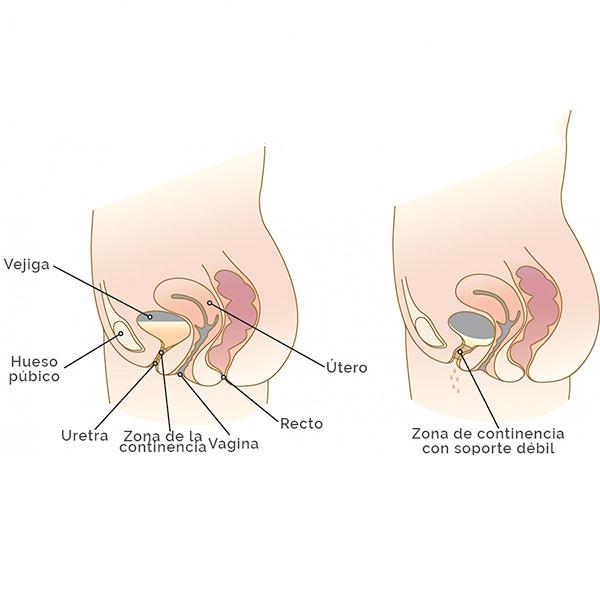 esquema de incontinencia urinaria