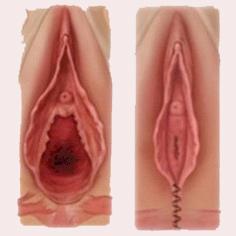 esquema de perineoplastia