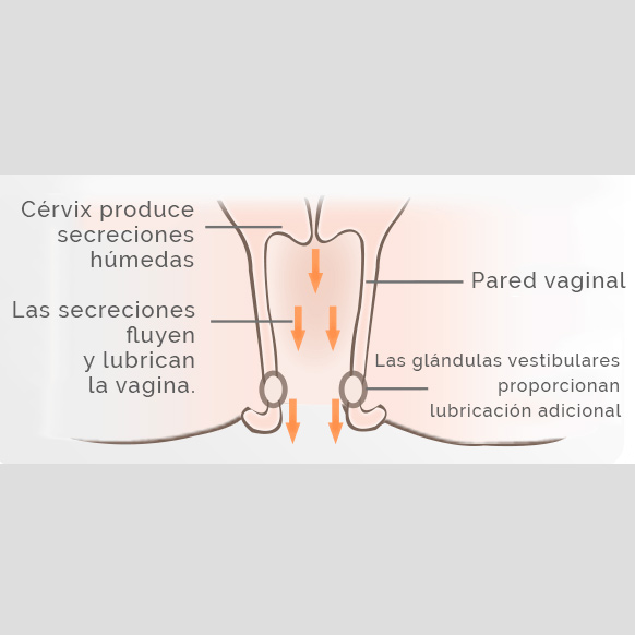 esquema de sequedad vaginal