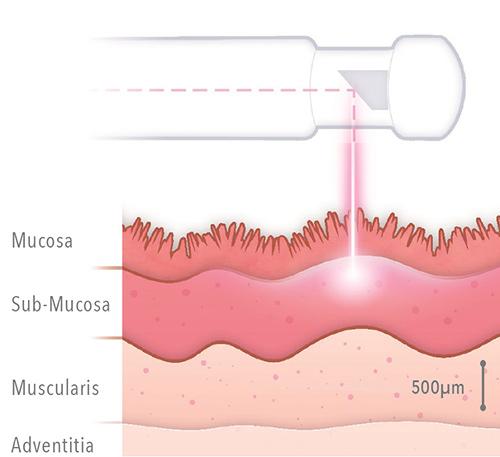 laser aplicado sobre la mucosa vaginal